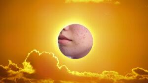 Cum putem remedia acneea în timpul expunerii la soare